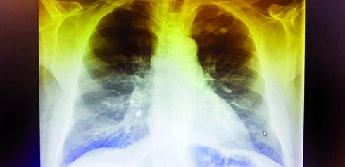 צילום הריאות לפני הטיפול | צילום: 'וולפסון'